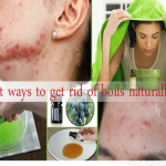 6 Best Ways To Get Rid Of Boils Naturally