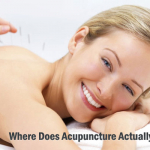 How Does Acupuncture Actually Help or Work?