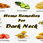 Amazing Diy Home Remedies For Dark Neck Skin