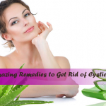 Amazing Remedies To Get Rid Of Cystic Acne