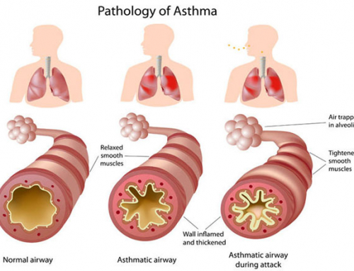 Best Herb For Treating Respiratory Problems
