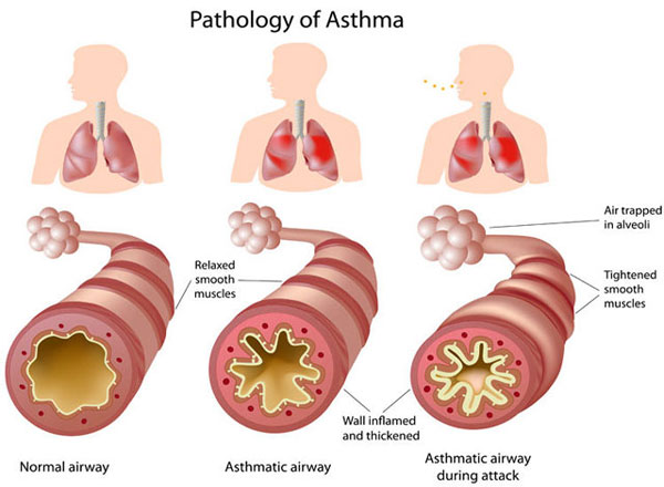 herbs for treating lungs