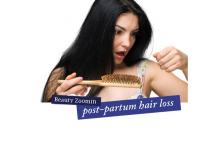 Best remedies for postpartu