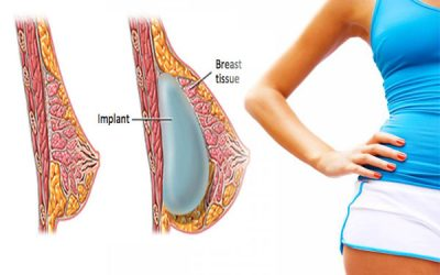 Breast Implants For Athletic Women