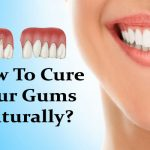 How To Cure Your Gums Naturally
