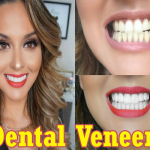 Dental Veneers The Secret Behind Women's Dazzling Smiles