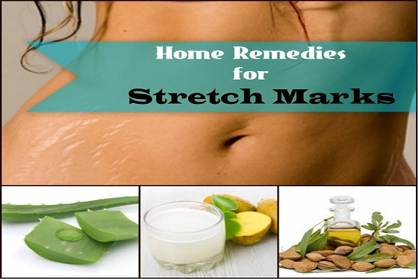 Excellent Home Remedies For Stretch Marks Removal