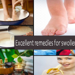 Excellent Remedies For Swollen Feet During Pregnancy