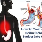 Know How To Treat Gastric Reflux Before It Evolves Into Cancer