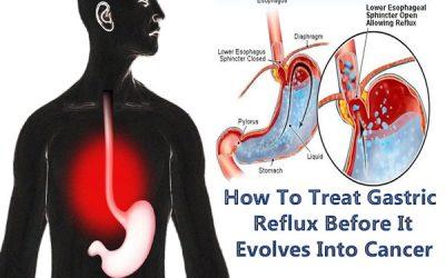 Gastric Reflux