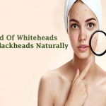 Get Rid Of Whiteheads And Blackheads Naturally