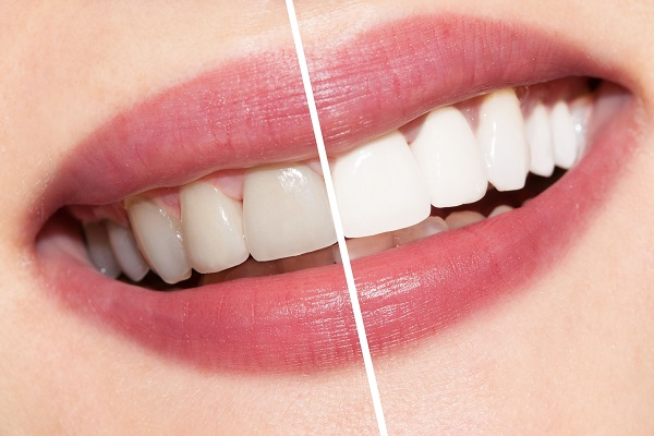 Get White Teeth Without Special Procedures!