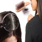 Natural Cures for Hair Loss and Dandruff