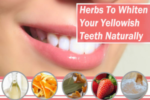 Whiten Your Yellowish Teeth Naturally