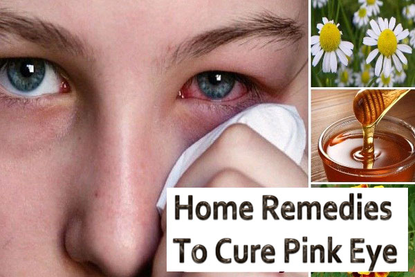 Home Remedies To Cure Pink Eye