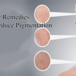 Home Remedies To Reduce Pigmentation