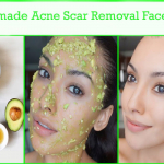 Homemade Acne Scar Removal Face Mask