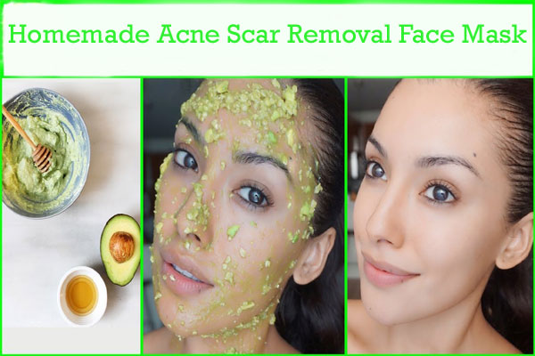 Homemade Acne Scar Removal Face Mask Beautyzoomin