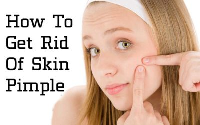 Get Rid Of Skin Pimple