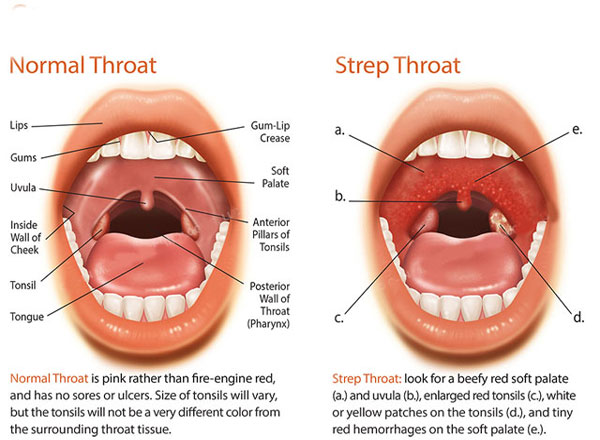 Normal Throat Vs Sore ...