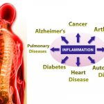 Inflammation, A Phenomenon That Kills Slowly But Certainly