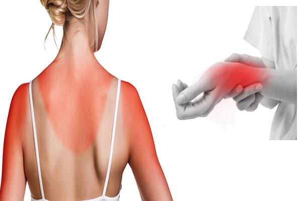 Injuries and sunburn