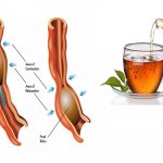 Irritable Bowel Syndrome. Know how and what to do to prevent it. Plus Special Tea Recipes to Boost your Intestinal System