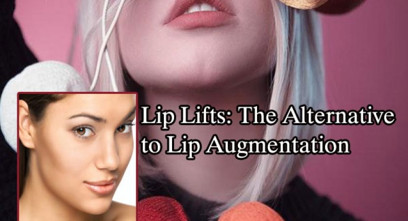 Lip Lifts