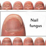 Nail fungus and the best treatment for it