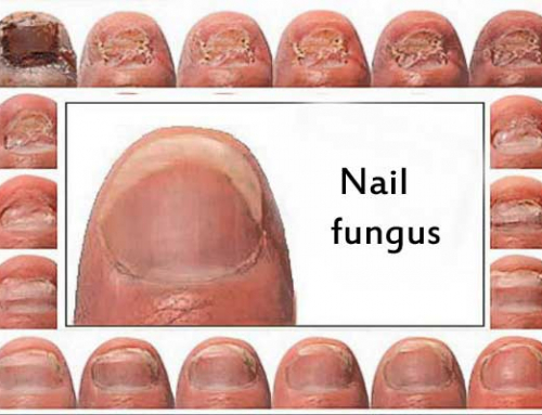 Nail fungus and the best treatment for it.
