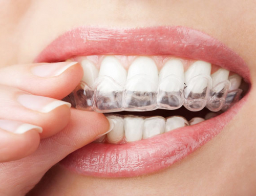 Natural Teeth Whitening Rules That Work