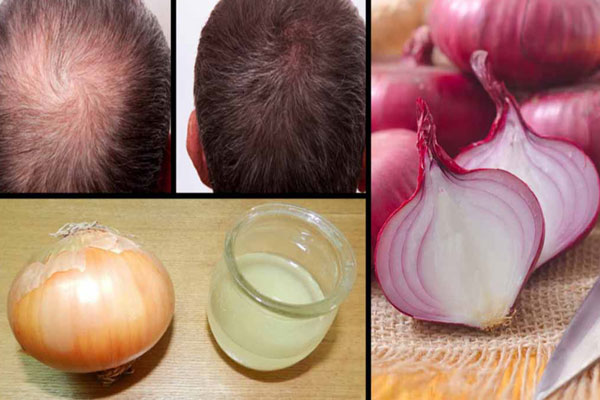 Onion juice restores your hair