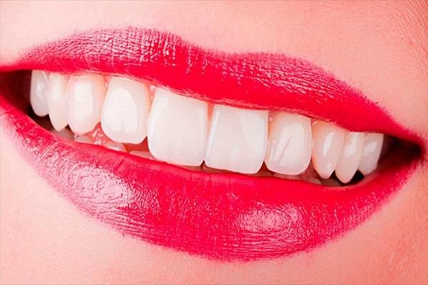 Overlarge Lips