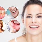 Periodontal Disease. Know The Facts And Remedies How To Cure Oral Infections