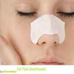 Six Tips Against Blackheads