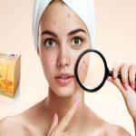 Basic Skin Problems That Can Be Cured With Manuka Honey