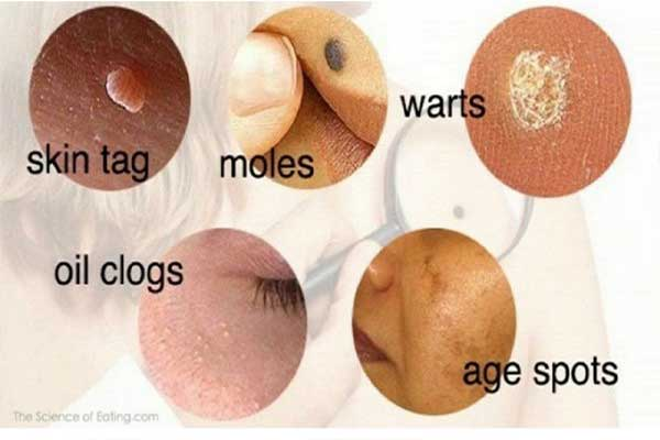 Skin Tags Signs