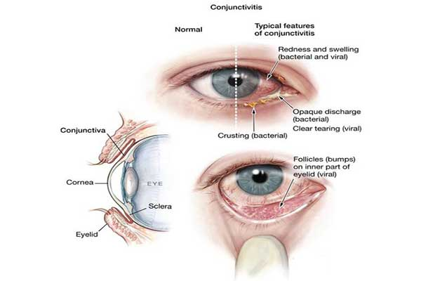 Some Symptoms of viral pink eye