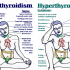 Suffer from Hypothyroidism or Hyperthyroidism ? Find out how and treat the disease on time.