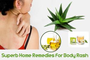 Superb Home Remedies For Body Rash