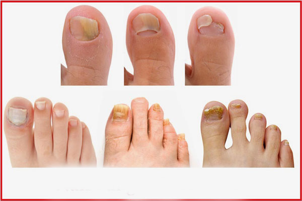 Symptoms of nail fungus