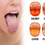 Know What Does Your Tongue Says About Your Health