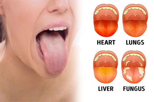 Tongue Says About Your Health