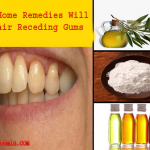 Top Home Remedies Will Repair Receding Gums