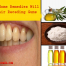 remedies for gums