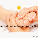 Top Herbal Home Remedies For Bunions