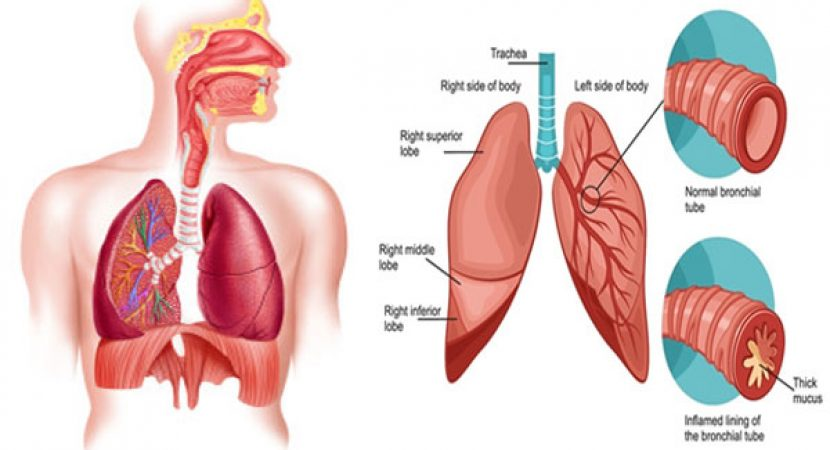 Treating Bronchitis