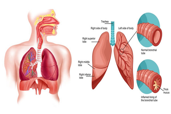 Treating Bronchitis