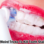 3 Weird Tricks To Kill Teeth Stains