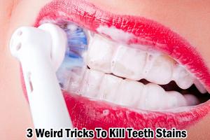 3 Weird Tricks To Kill Teeth Stains